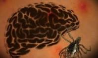 Lyme Testleri Hakkında Bilgiler… (3)