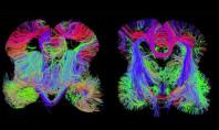 Otizm ve Şizofreni Sorunu Nerede Başlıyor Sorusunun Cevabı İnsan Beyin Haritası İle Gösterildi.