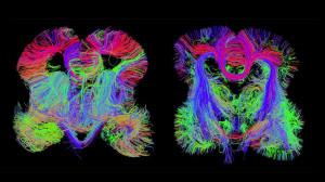 beyin map
