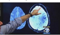 Alzheimer için küçük dev adım