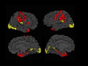 cortical-thickness-schizophrenia